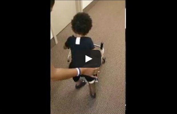 Adorable Two Year Old Takes His First Steps With the Help Of Prosthetics.